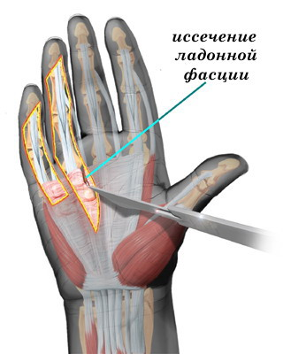 dupuytren's contracture 3